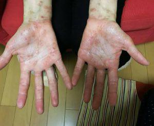 ファスティングレポート ~アレルギーを治したい~